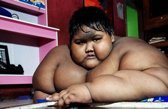 Arya Permana, así se se ve después de ser el niño mas gordo del mundo