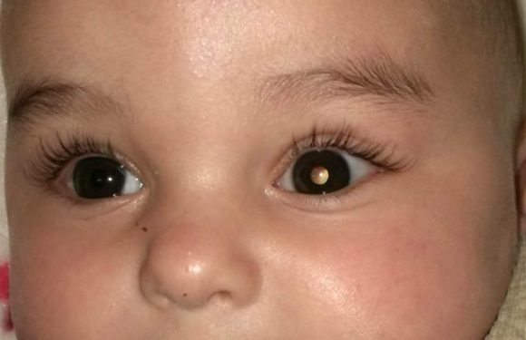 Tratan por primera vez un cáncer de retina pediátrico con un virus